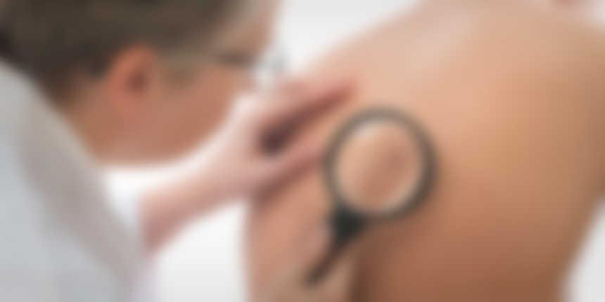 Summer Tip: Get Checked for Skin Cancer